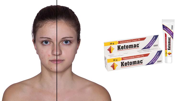 Should You Try Out the Best Ketoconazole Cream for Acne?